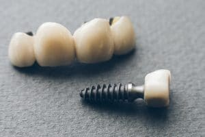 bridges and dental implants