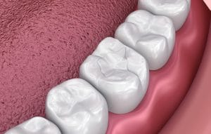 composite resin dental filling