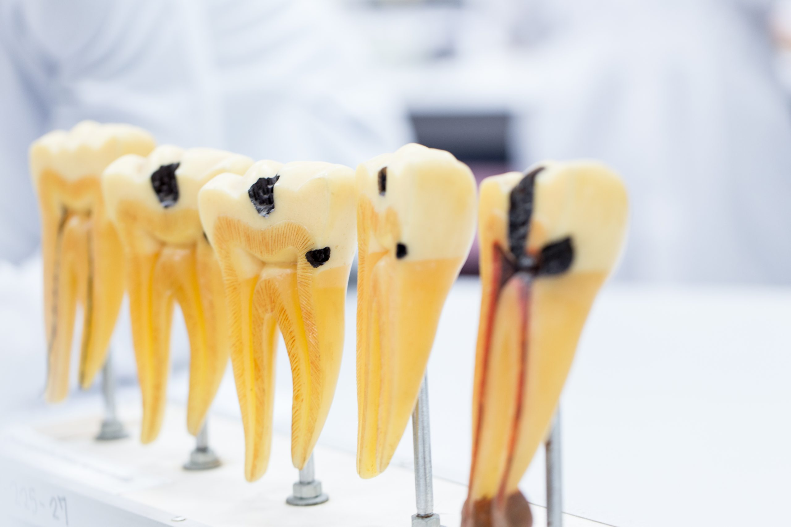 pacific hills root canal